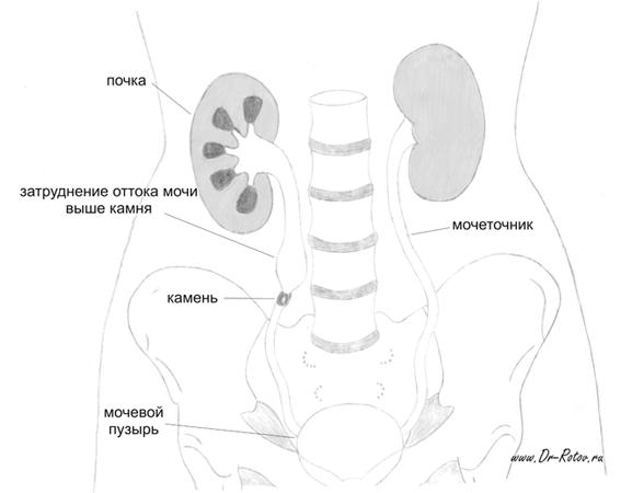 признаки и диагностика при мочекаменной болезни
